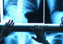 """Caserta / Provincia. Sospese le attività ambulatoriali di radiologia, interrogazione di Zinzi (Lega): """"Non esiste solo il covid""""."""